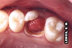 11 melhores imagens de endodontia   Dentes, …